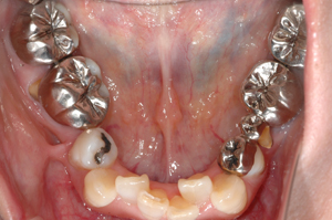 術前3下顎(1)