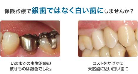 かけ も ない に 歯牙
